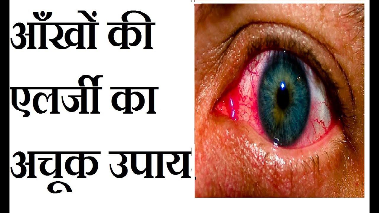 Eye Allergy Treatment In Hindi