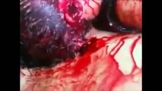 Repeat youtube video اغتصاب نساء سوريا اين انتم يا مسلمون