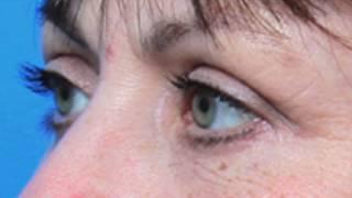 Dr. Jennifer Harrington | Before & After Video: Eyelid Surgery Case #61