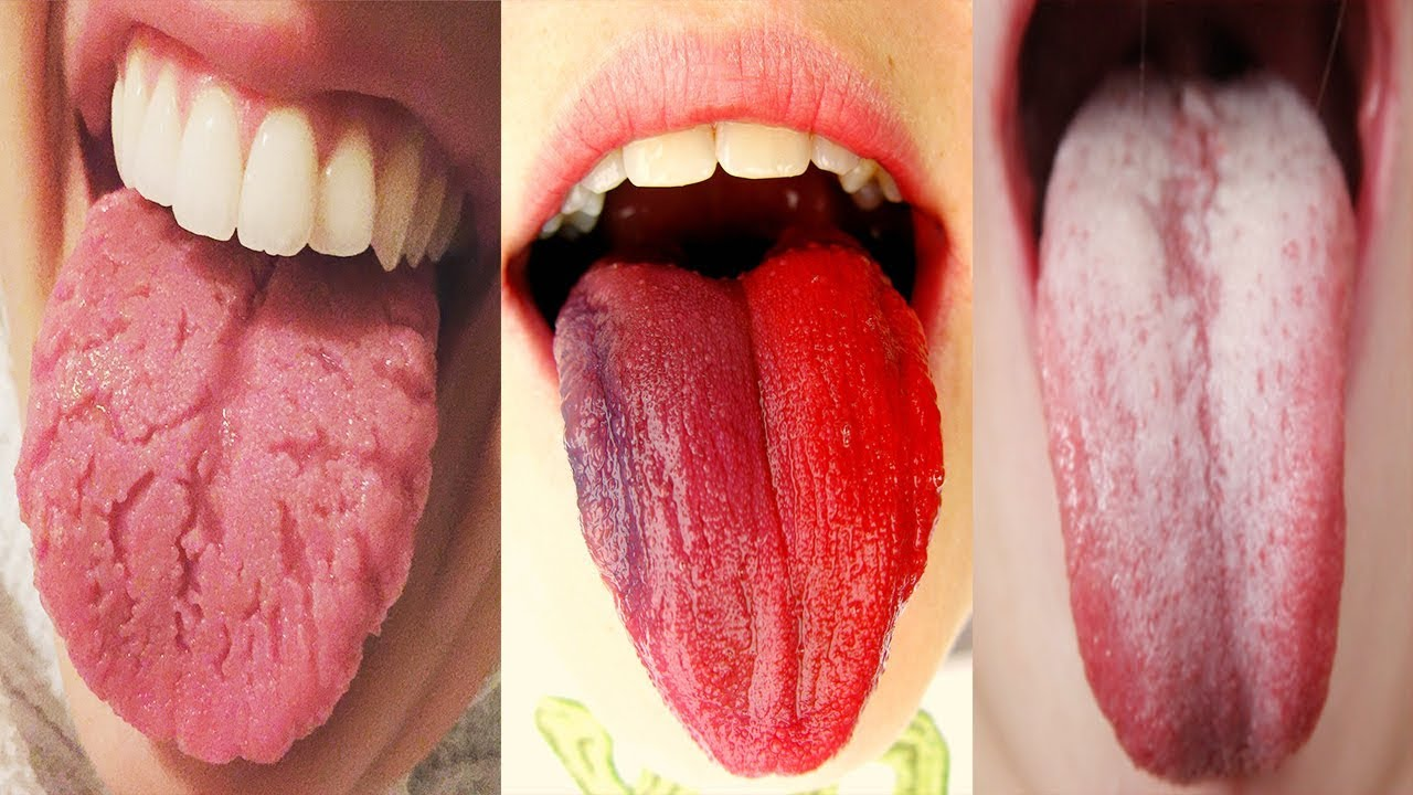 klonopin white tongue