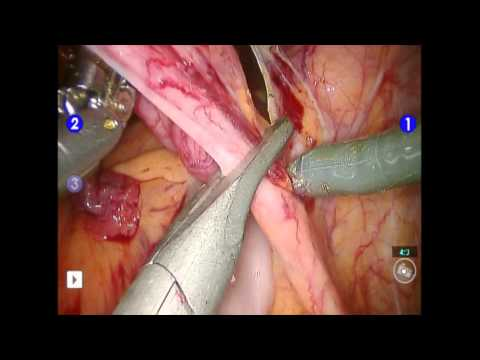 Endometrial Cancer Etiology and Treatment