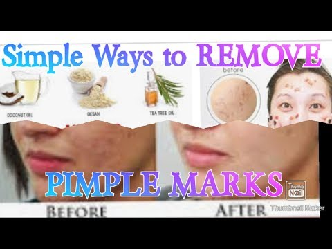 simple-ways-to-reduce-pimple-marks-and-tips