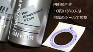 10円ハゲ 円形脱毛症 体験記 スーパーミリオンヘアー試してみた映像 thumbnail