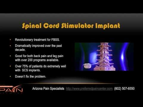 Overview Of Failed Back Surgery Syndrome From A Phoenix Pain Clinic
