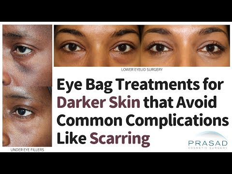 Eye Bags Treatments for Dark Skin that Avoid Common Complications Like Scarring