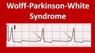 Wolff-Parkinson White Syndrom: ECG Findings | ECG WPW Syndrome