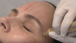 Vampire Facial (Microneedling w/ PRP)  | Between The Before & After Ep. 3 | NewBeauty