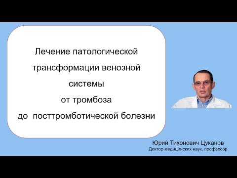 Лечение посттромботической трансформации венозной и лимфатической систем, лекция  для врачей