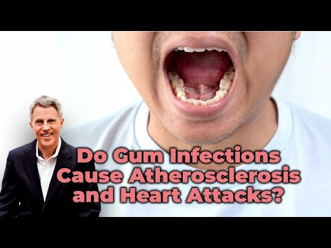 Do Gum Infections Cause Atherosclerosis and Heart Attacks? - FORD BREWER MD MPH