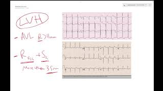 LVH on ECG (Left ventricular hypertrophy) - Learn ECG! - Dr Jamal USMLE
