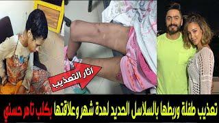 شاهد- حرق طفلة وربطها بسلسلة حديد وعلاقتها بكلب الفنان تامرحسني #اللغز