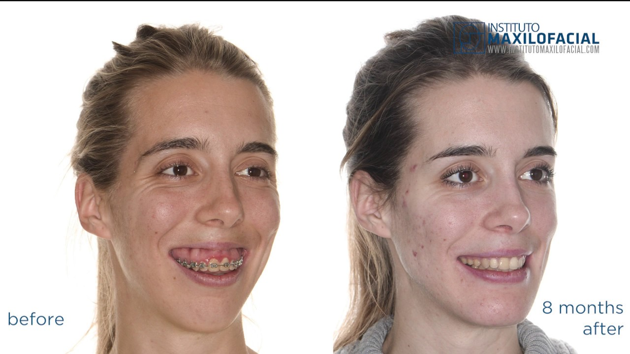Image result for gummy smile surgery before and after