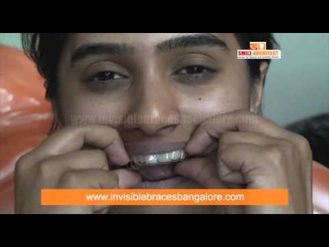 Clear Path Invisble Braces Patient Review in Bangalore | Clear Aligner Braces in Karnataka, India