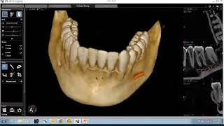 CS 3D Imaging Software Training: CBCT Anatomical Review of the Mandible
