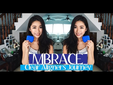 MBrace Clear Aligners + Q&A | Mongabong
