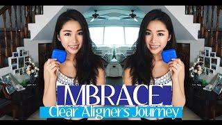 MBrace Clear Aligners + Q&A | Mongabong
