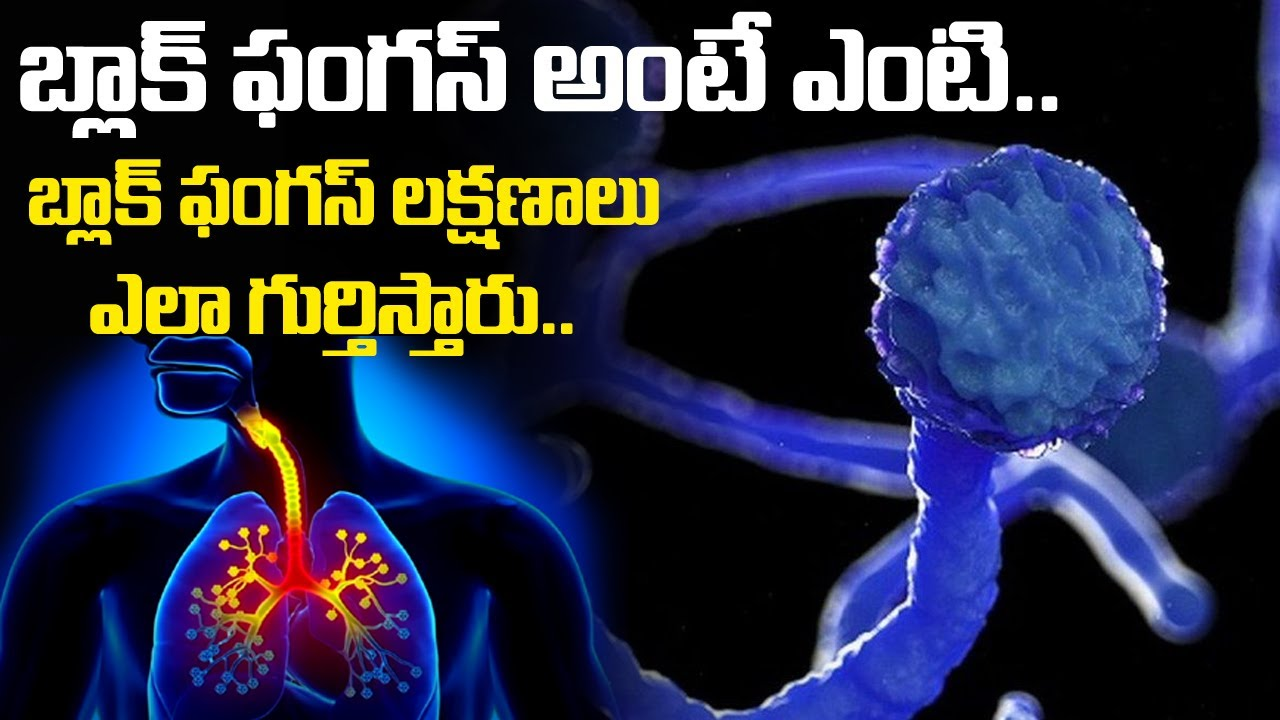 Black Fungus అంటే ఏంటి? | Treatment and Food For Black Fungus Infection | Friday poster
