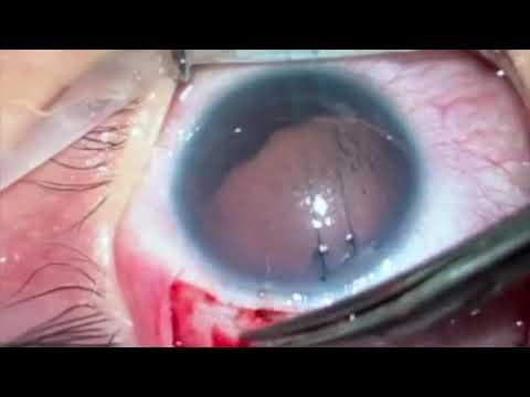 TUBE EROSION AND ITS TREATMENT AFTER AHMED GLAUCOMA VALVE IMPLANTATION IN CONGENITAL ANIRIDIA