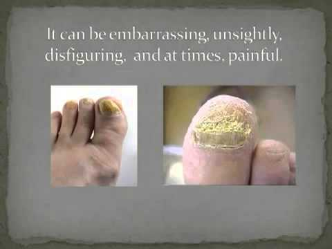Treatment for Nail Fungus- Claripo Review - YouTube