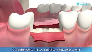 3D動画で見るデンタルインプラント治療の流れ「インプラントを奥歯に一本埋め入み」