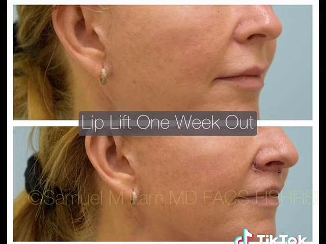 Dallas Lip Lift One Week Out Before & After