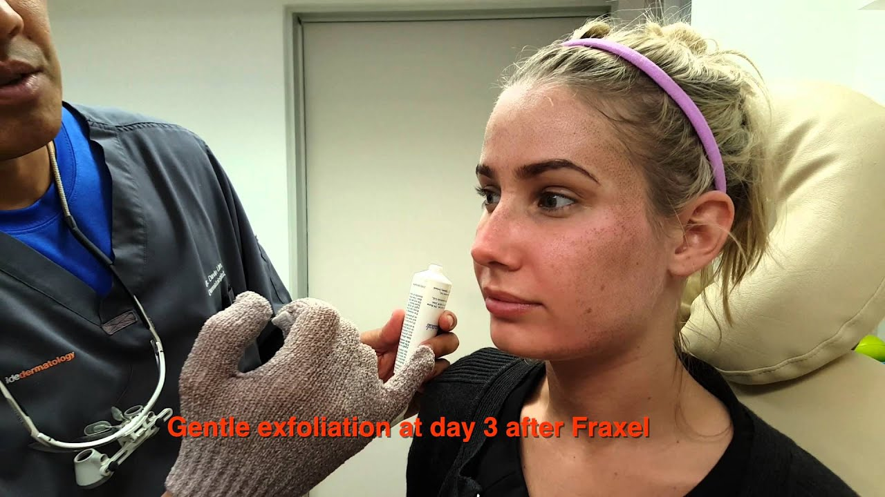 How to heal faster from fractional laser resurfacing