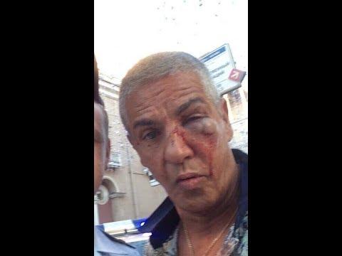 Звезду фильма «Такси» жестоко избили в Москве. Видео!