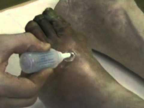 Ампутация ступни или пальца ноги Операции и процедуры