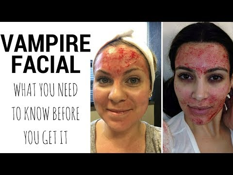vampire-facial---what-you-need-to-know-before-you-go-under-the-needle