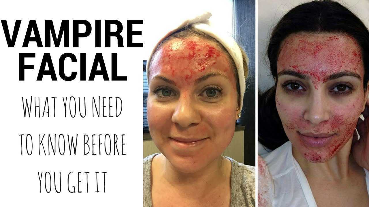 Vampire Facial What You Need To Know Recovery Time