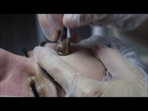 Вакуумная чистка лица / Дермабразия / Пилинг кожи лица