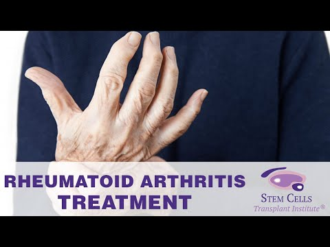 Rheumatoid Arthritis Stem Cells Treatment, Autoimmune