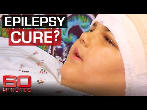 Doctor's remove half of girl's brain to cure epilepsy | 60 Minutes Australia