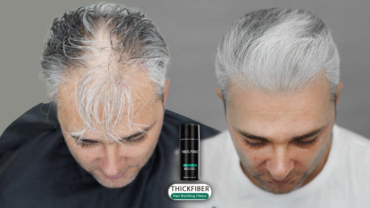 Gray thinning Hair Transformation 2021