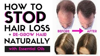 How to STOP HAIR LOSS & Regrow Hair Naturally - Stop Thinning Hair with just a few drops of THIS!