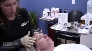Dermaplaning & PCA SKIN Professional Treatments