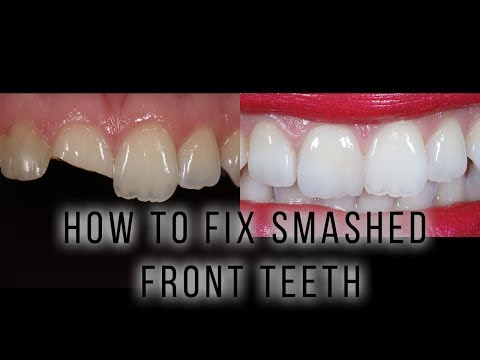 How To Fix Smashed Front Teeth