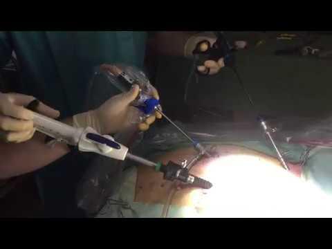 Jaroslav Kalvach představuje laparoskopický svorkovací nástroj, tzv. stapler