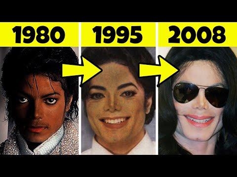 Perchè Michael Jackson è Diventato Bianco Negli Anni?