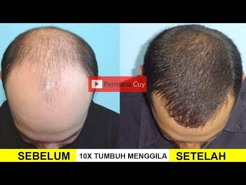 Rambut Tumbuh 10x Lebih Cepat Hanya Dengan Cara Ini