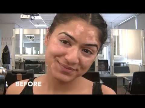 Before & After -Vitiligo  Transformation