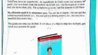 Eczema -eczema and treatment - Must see Thumbnail