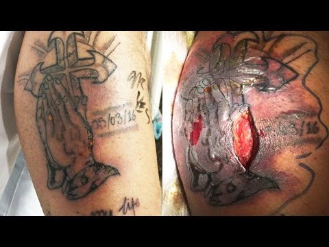 Man dies from septic shock after swimming with new tattoo;Man rams glass inside his body -06/08/2017