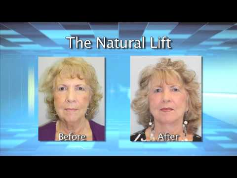 Dr. Jason Swerdloff, The Natural Lift