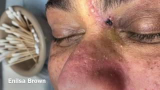 Managing Ethnic Skin (Extractions Part 7) thumbnail