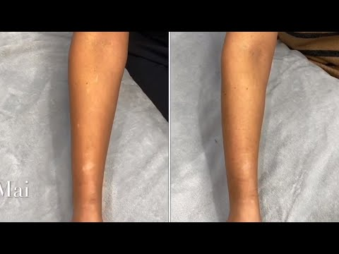 Scar Camouflage Tattoo Before, After And 10 Days Healing  ~  (on ARM BURNS)    PART 2