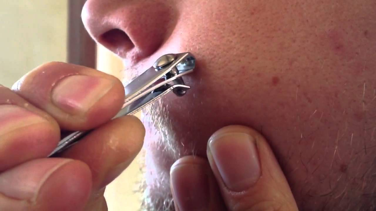 skin tag wart removal youtube