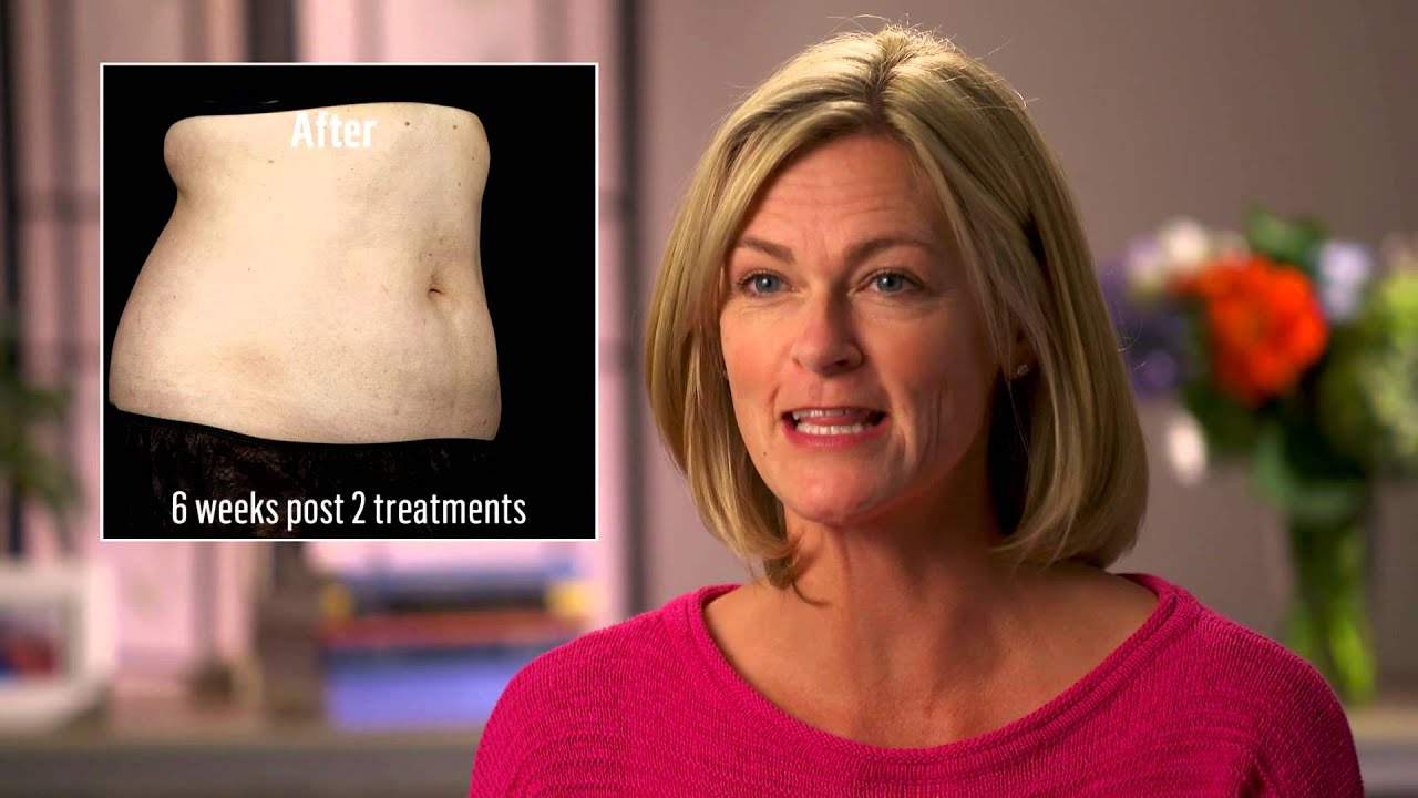 SculpSure vs Cool Sculpting | Compare The Facts and Find The