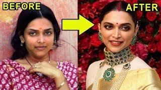 10 Plastic Surgery Photos Of Popular Bollywood Actresses  - Priyanka Chopra,Deepika Padukone