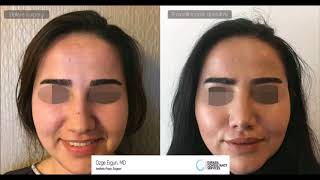 Rhinoplasty Before After - 9 Months Result - Ozge Ergun MD, Aesthetic Plastic Surgeon